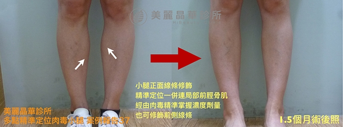 肉毒瘦小腿案例37術前術後比對