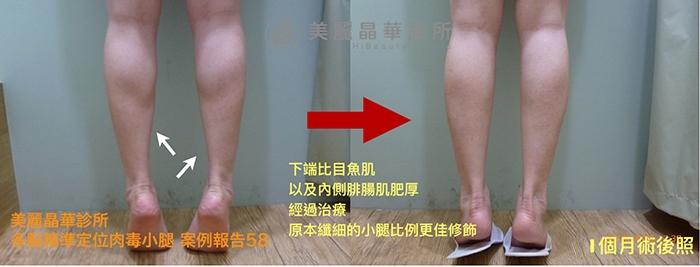 肉毒瘦小腿案例58術前術後比對