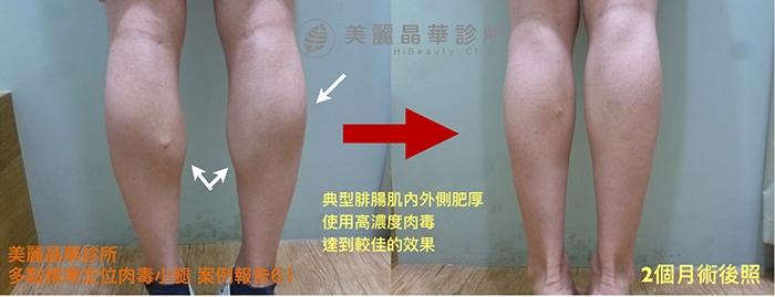 肉毒瘦小腿案例61術前術後比對